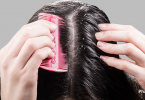 pharmeasy-remedies-for-treating-dandruff-blog