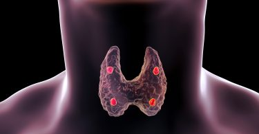 Stress and Thyroid