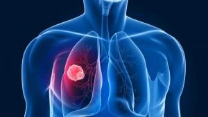 HG602_tumor-lung-cancer_FS