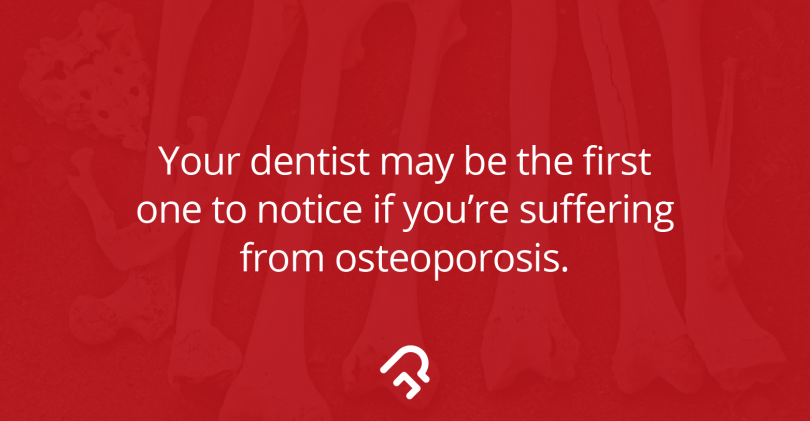 Dealing with Osteoporosis