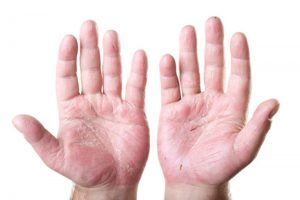 How to Treat Psoriasis on Your Hands
