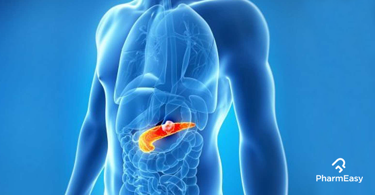 diabetes-and-pancreatic-cancer-health-blog