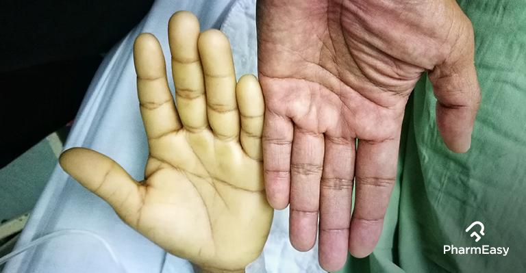 iron-deficiency-anaemia-pharmeasy-blog