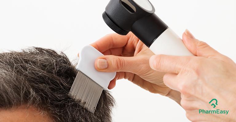 pharmeasy-scalp-conditions-in-men-blog