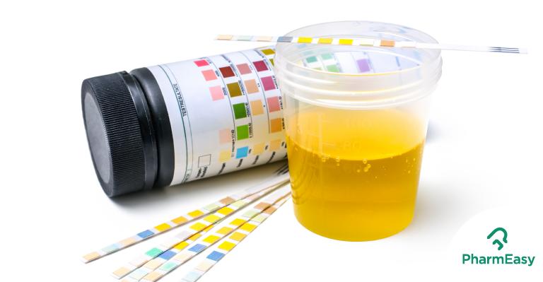 pharmeasy-urine-health-blog
