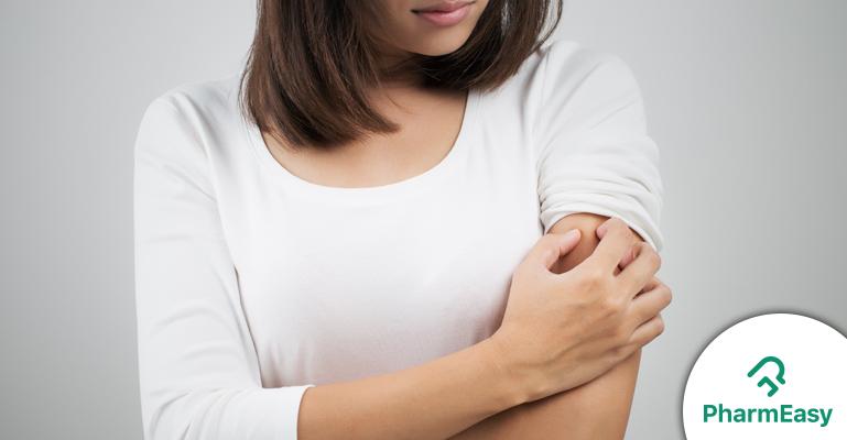 Monsoon Skin Allergies