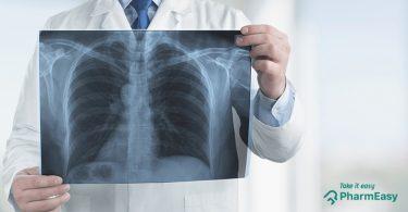 Asthma Diagnosis & Test - PharmEasy